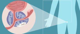 Простатит - строение органов