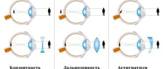 Близорукость, дальнозоркость, астигматизм- выбираем линзы